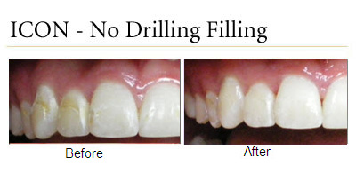 Icon Fillings Without The Drill Blog Dr King S
