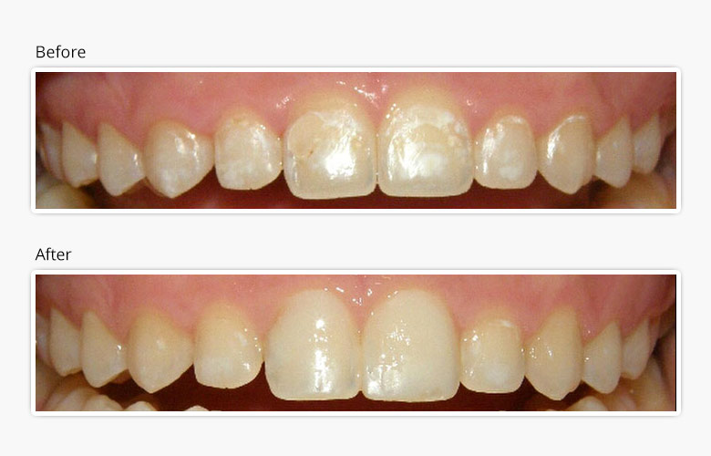 How Icon Works Quick And Easy Treatment Of The Early Stage Cavities