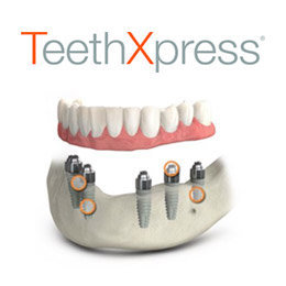 Photo for TeethXpress